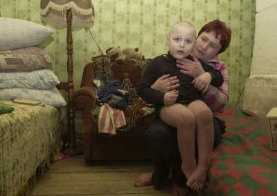 09 Muchas son las consecuencias del accidente nuclear en Bielorrusia
