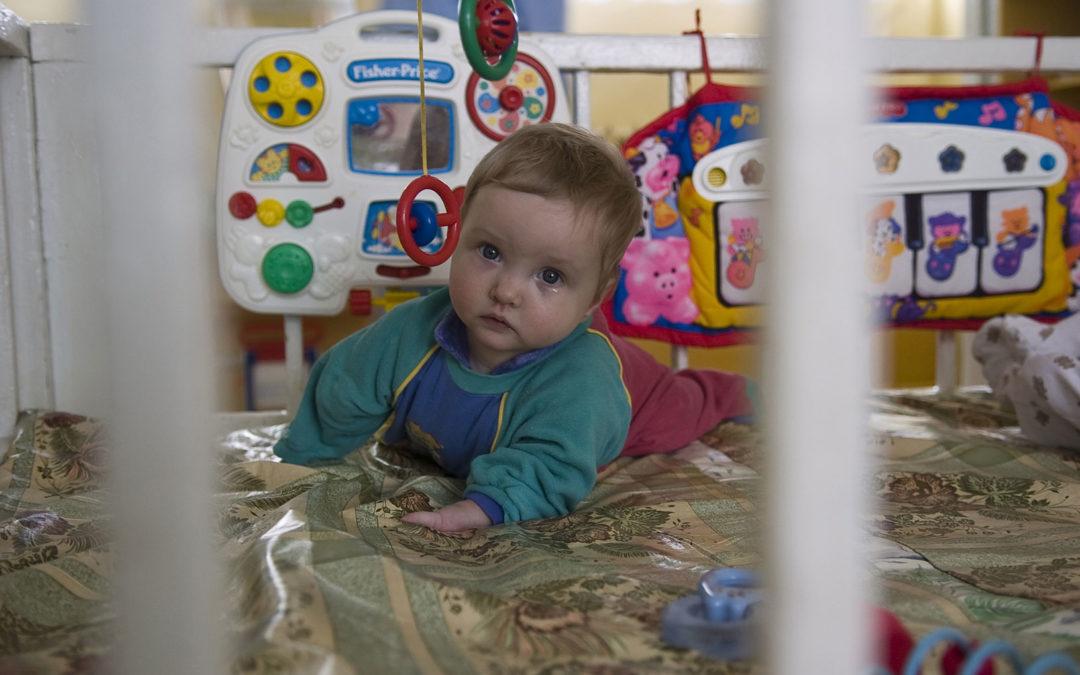 20 Anna nació con graves deformaciones en sus extremidades